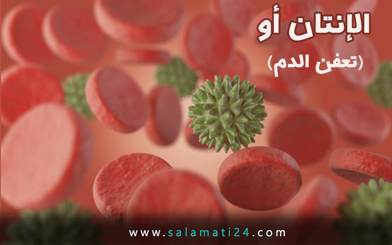 الإنتان أو تعفن الدم