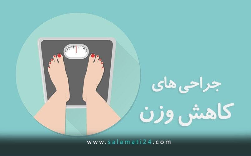جراحی های کاهش وزن