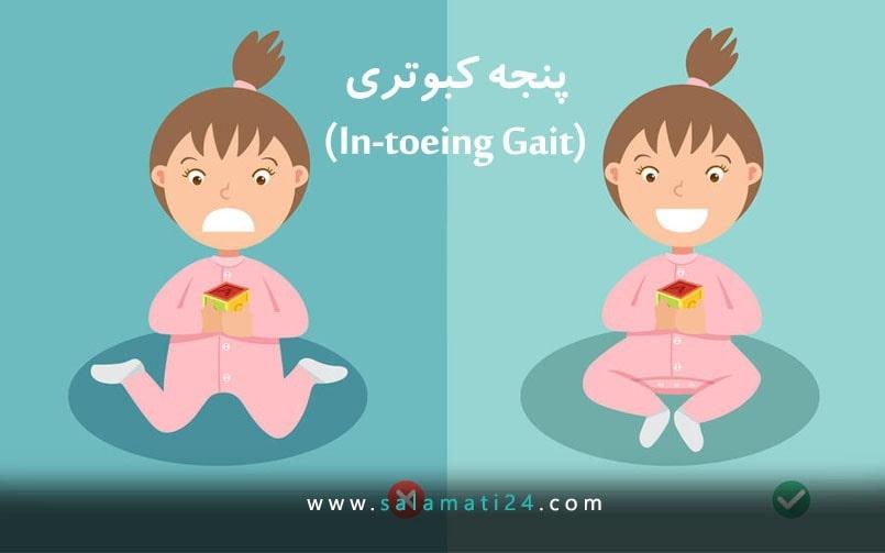 In-toeing Gait (پای پنجه کبوتری)