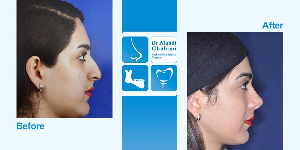مهدی غلامی متخصص جراحی دهان و فک و صورت - مشهد